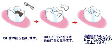 中央配置画像